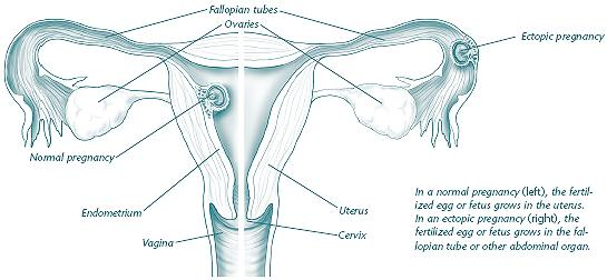 Ectopic Pregnancy: Are You at Risk?