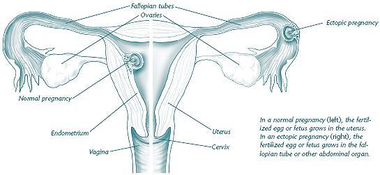 tubal pregnancy