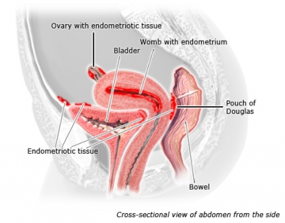 durchfall bei endometriose